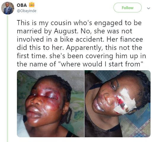 Nigerian lady left with a serious battered eye by her boyfriend who she is set to wed in August (photos)