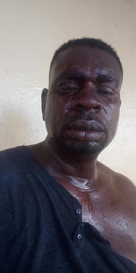 Veteran musician, Baba Fryo shares bloody photos of his face says,