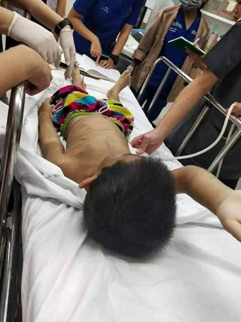 Heartbreaking Photos: 6- year-old boy repeatedly assaulted and battered by his mother and stepfather because he wets the bed