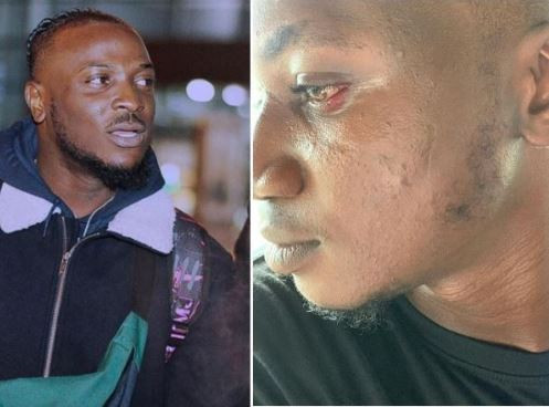 Pamilerin gets slapped by Peruzzi