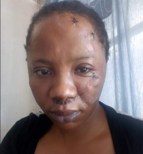 Woman who went into a coma after being thrown out of moving one-chance bus narrates her shocking ordeal (photos)