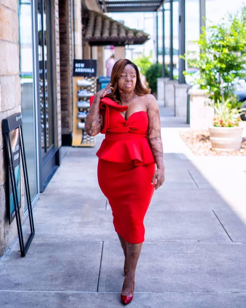 Singer and Sosoliso plane crash survivor, Kechi Okwuchi, shares stunning new photos
