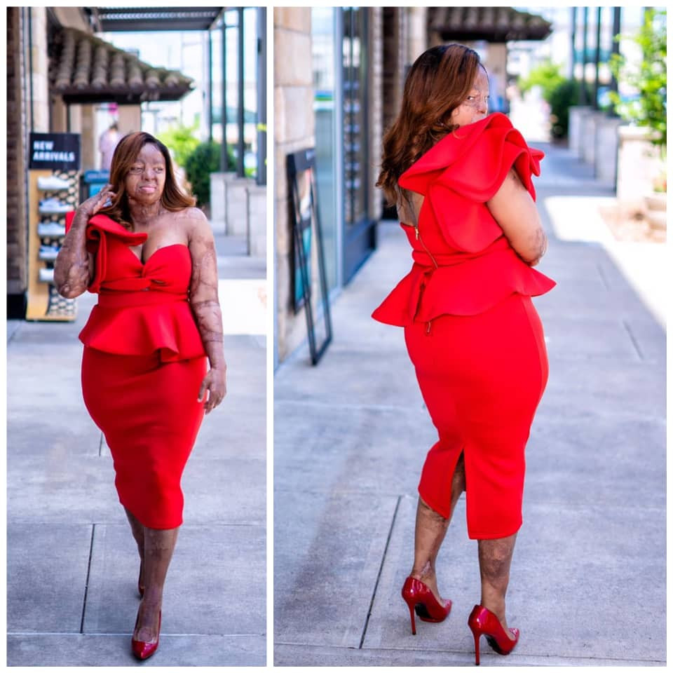 Singer and Sosoliso plane crash survivor, Kechi Okwuchi, shares stunning new photos