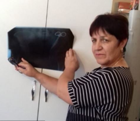 Photos: 62-year old Russian woman discovers she has had a six-inch surgical clamp inside her stomach for 23 years