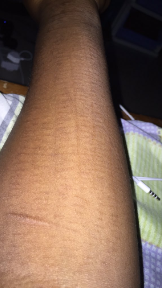 Woman who used to self-harm shares photo of self-inflicted scars as she celebrates being clean for 2 months