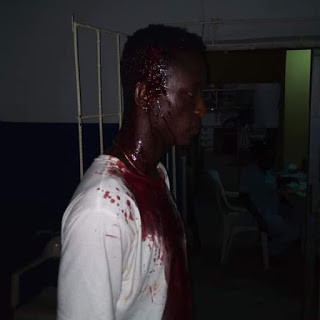 Graphic: Young man drenched in blood after he was brutally attacked with bottle and cutlass by suspected phone snatchers in Sapele