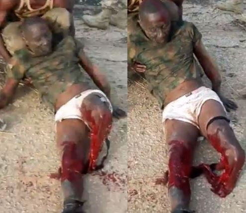 Graphic: Reno Omokri shares graphic video of?a Nigerian soldier with his legs destroyed in battle with Boko Haram