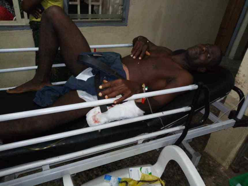 Photo: Brave security officer shot in the stomach while confronting armed robbers in Ogun