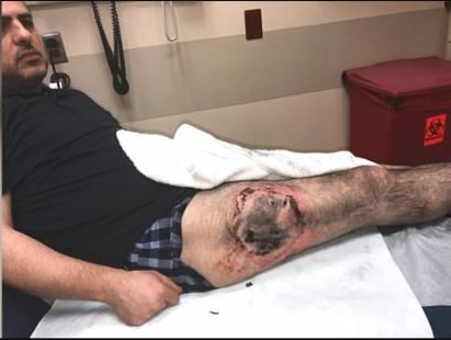 Man is left with severe third-degree burns on his thigh after his vape battery exploded in his pocket (Photos)
