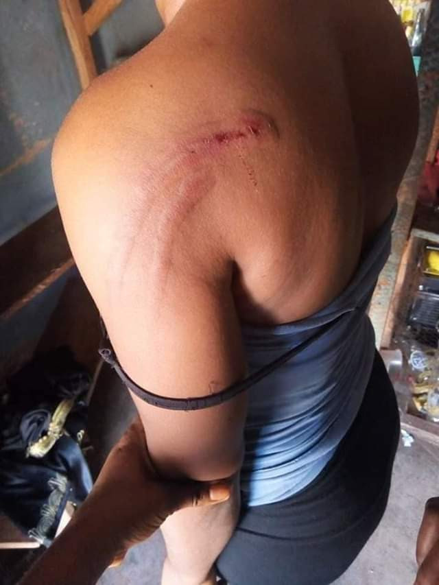 Young woman beaten mercilessly by Neighbourhood security men in Enugu over N1000  (photos)