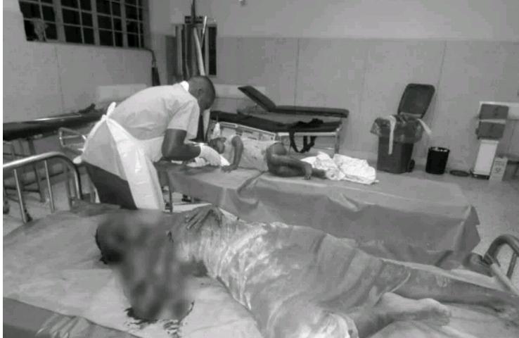 Photo: Ugandan man hacks wife with machete over alleged infidelity
