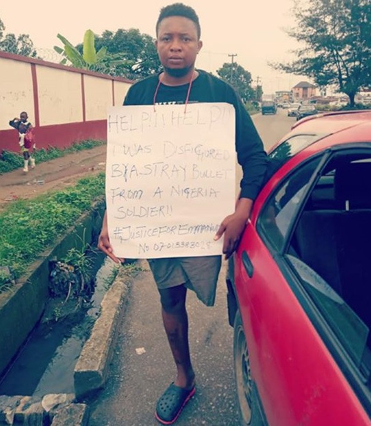 Photos: Young man who lost his limb after he was accidentally shot by a soldier, protests outside Army Barracks in Port Harcourt