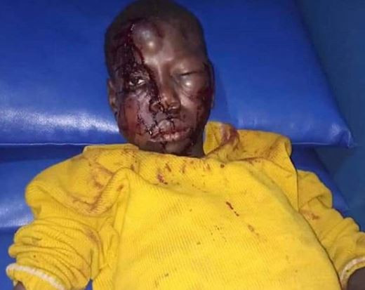 Graphic Photo: 14-year old boy brutally beaten by his uncle for stealing??3,000 from a neighbor