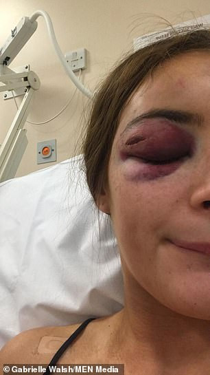 """Teenage girl punched unconscious because she told man: """"I"""