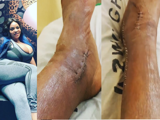 Cossy Ojiakor shows the condition of her foot post-surgery (video)