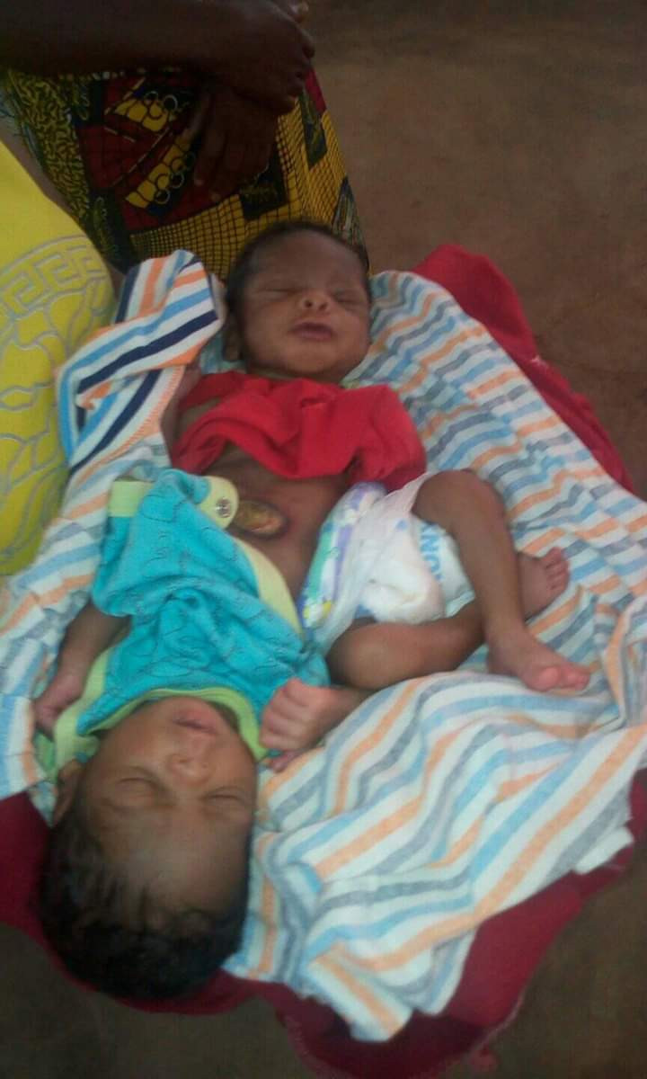 Photos: Woman gives birth to conjoined twins in Benue