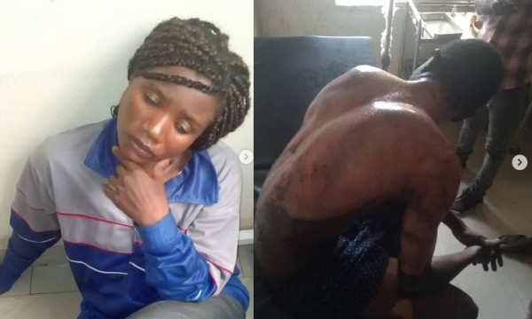 Heartless Woman pours hot water on her daughter's boyfriend in Abuja