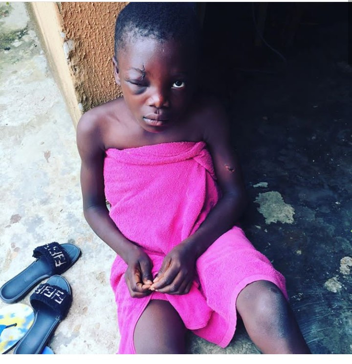 Young girl struggling to see out of one eye after being flogged by her dad in Lagos
