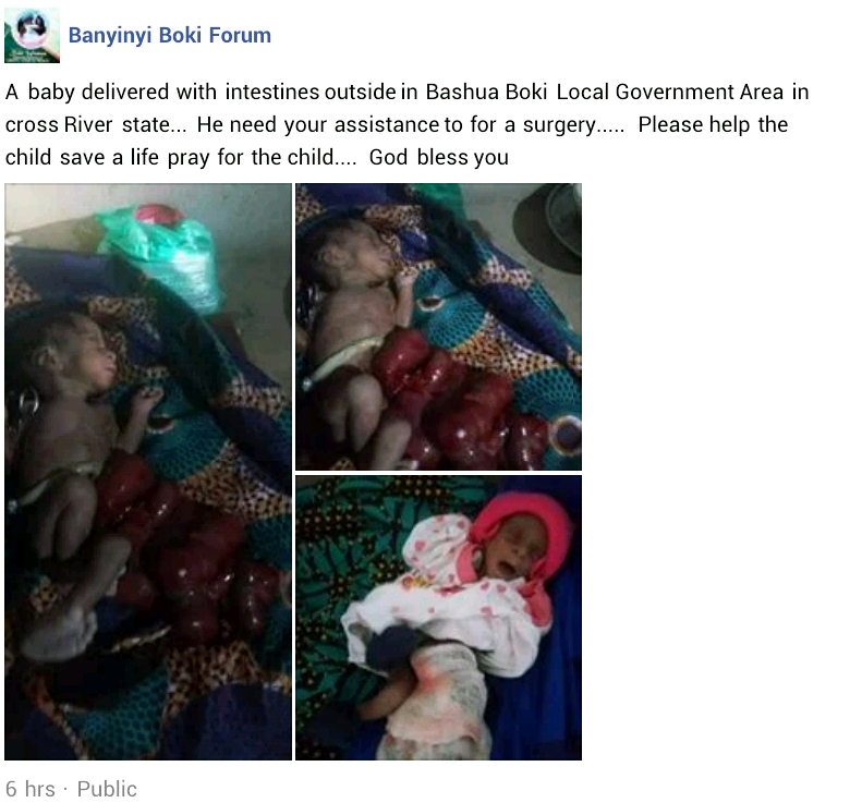 Photos: Newborn baby born with his intestines outside his body spotted in Cross River state
