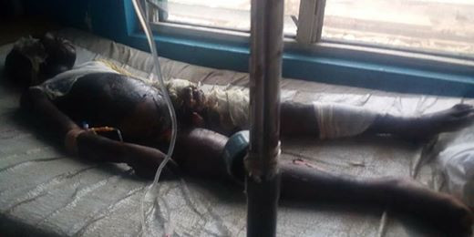 Man sets his son ablaze in Akwa Ibom for allegedly stealing N500 from landlord (graphic photos)