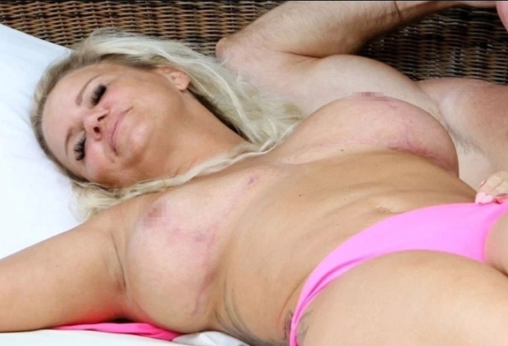 Kerry Katona goes topless to reveal painful-looking surgery scars after 4th boob job