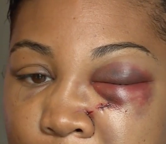 Woman to have surgery after being hit in the face by McDonald