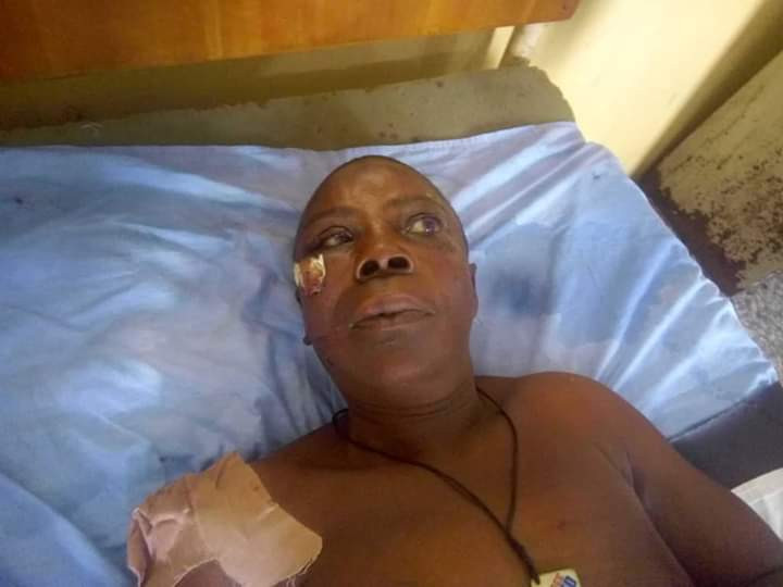 Photos: Unidentified woman in critical condition after being struck by hit-and-run driver in Sapele
