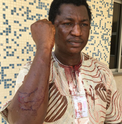 Photos: Journalist covering #freesowore protest in Abuja allegedly battered by DSS officials