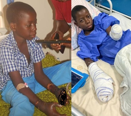 13-year-old boy loses both hands after his stepmother and her native doctor burnt them with hot coals following claims he is a wizard (photos)