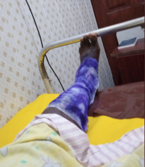 """I gave up on Nigeria yesterday"" Man narrates his unpleasant experience after his gas exploded and burnt him"