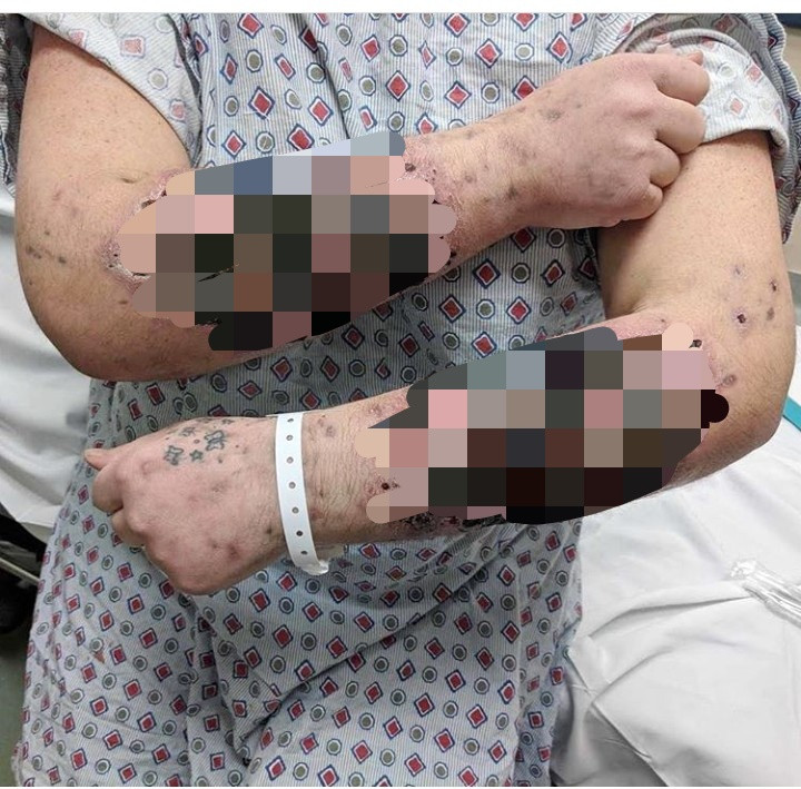 "Woman suffers severe skin necrosis resulting from injecting heroin laced with a substance known as ""Rizzy"" powder (graphic photo)"
