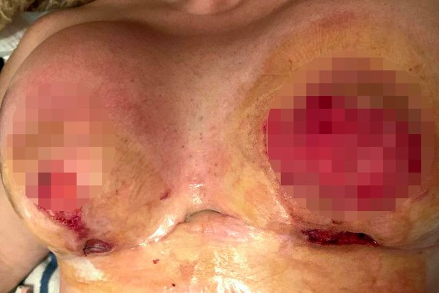 38-years-old woman's boobs rot away following botched plastic surgery