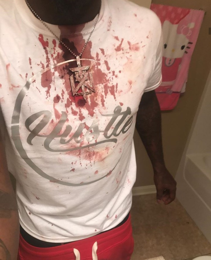 Musician stabbed for cheating with multiple women reveals the unexpected thing he did after