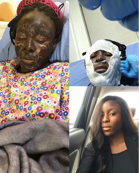Been too scared to post the pictures - Nigerian model marks 1 year of surviving a fire incident