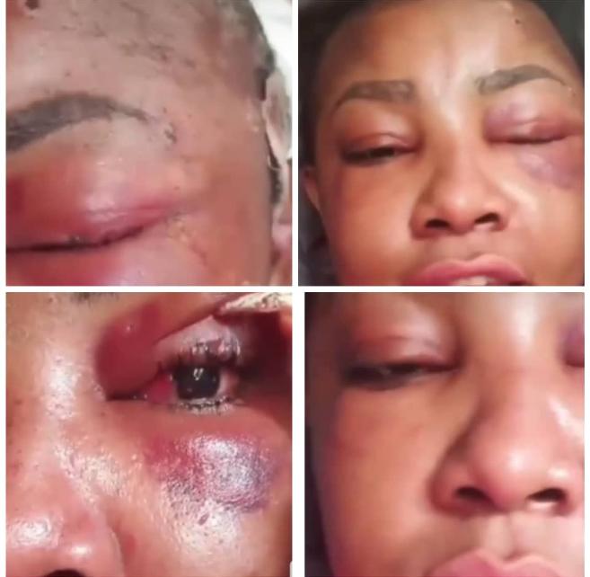 UK-based Nigerian doctor pokes holes in Angela Okorie