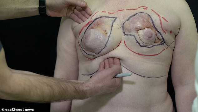 Woman has her breasts removed after a friend injected six jars of petroleum into her chest for ?5  (Graphic Photos)