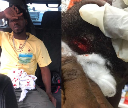 LIB Exclusive: Singer, Orezi demands N100m from?Bolt, one month after he was involved in a car crash that broke his jaw