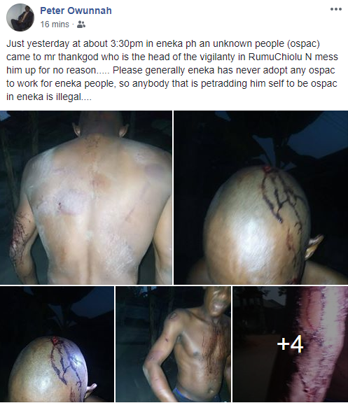 Head of vigilante in Rumuchiolu beaten up by men allegedly from a local vigilante group known as OSPAC (graphic photos)