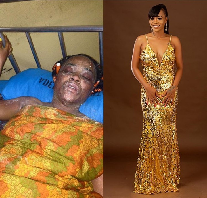 Burn victim who survived a gas explosion shares photos of her amazing transformation