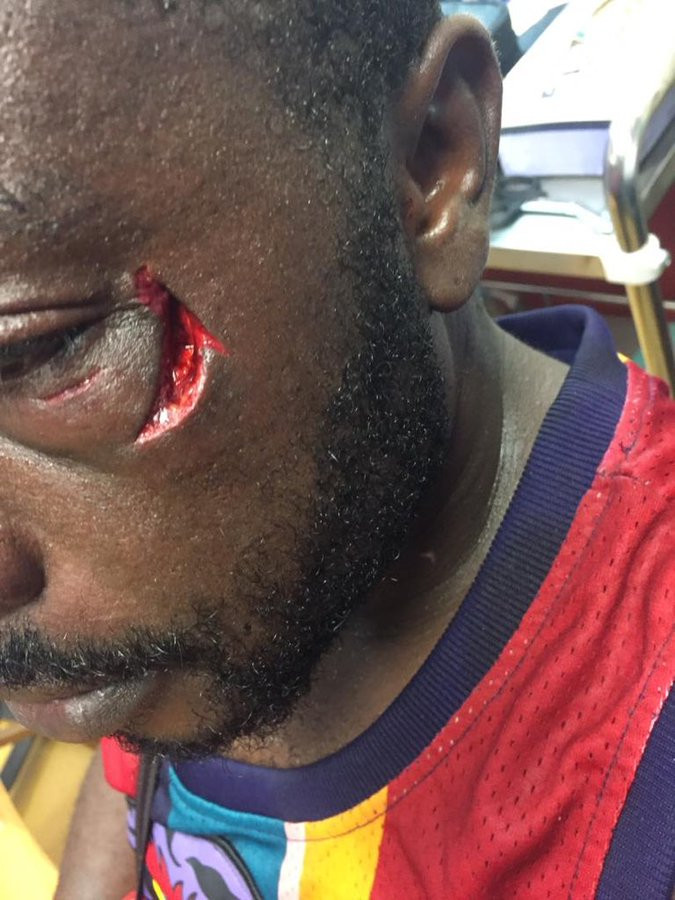 Graphic: Ghanaian boxer, Patrick Allotey beats up spectator mercilessly during a football game (video)