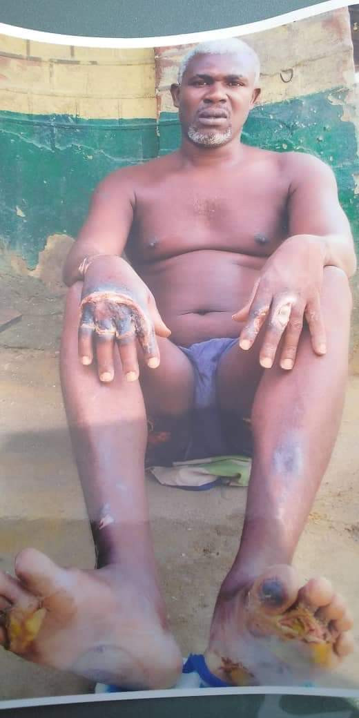 Ikokwu4: The four men arrested and tortured by police over alleged car theft in River State, released after DPP said they couldn?t establish any criminal case against them (photos)