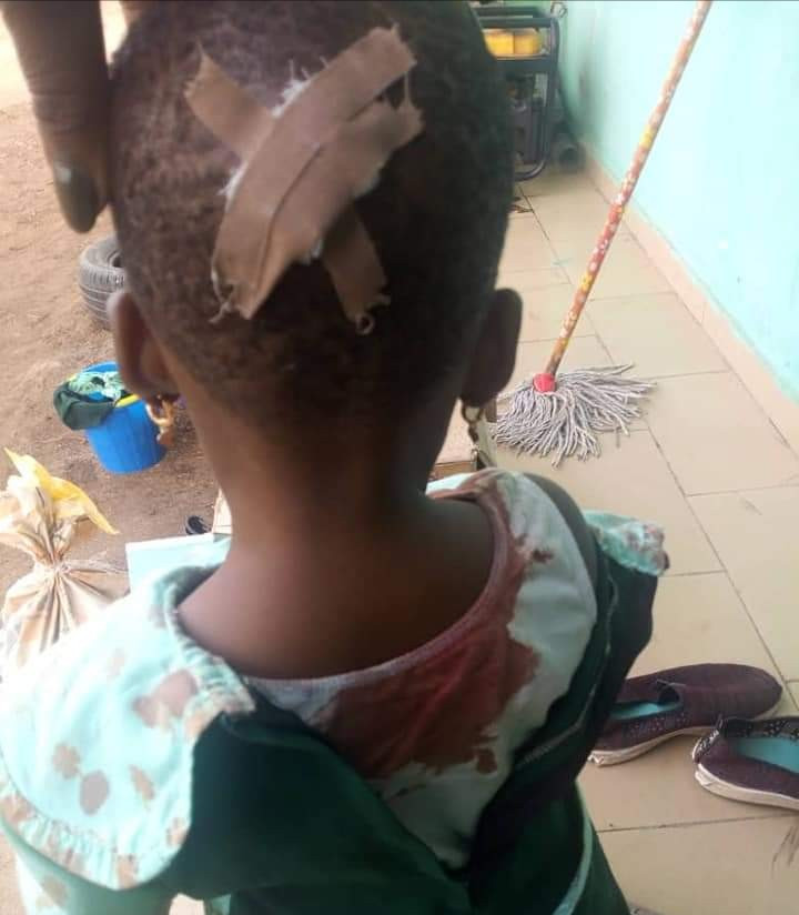 Maid pushes the child in her care, leaving her bleeding profusely from her head