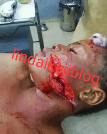 Young lady suffers serious injuries after her friend used blade to disfigure her face over allegations she snatched her boyfriend (photos)