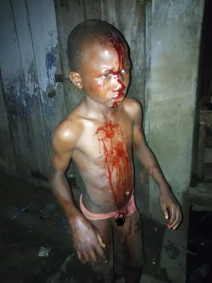 Little boy drenched in blood after allegedly being assaulted by his mother in Lagos (photos)
