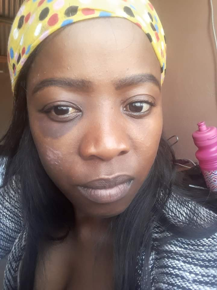 """He dragged me while I was screaming and bleeding"" - South African lady accuses a married man of beating and raping, shares photos of her battered face"