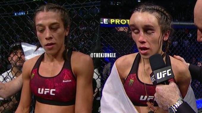 Image result for UFC fighter Joanna Jedrzejczyk's face left disfigured after savage defeat by Weili Zhang at UFC 248 (photos)