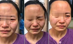 Nigerian Coronavirus patient 'savagely bites a nurse's face in China as she tried to stop him running away from quarantine' (Photos/Video)
