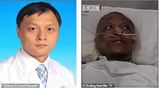 Chinese doctors who were critically ill with COVID-19 wake up to find that their skin has turned dark after the virus damaged their livers (photos)