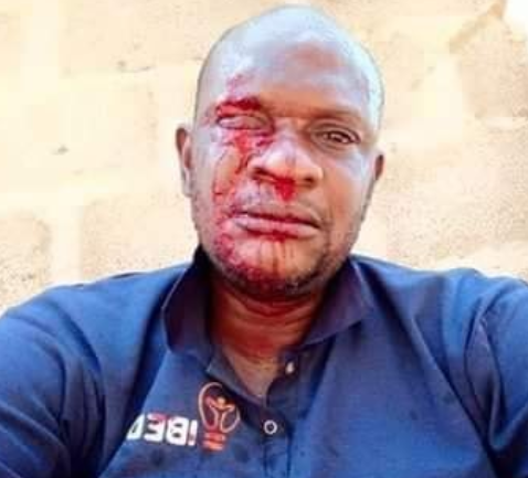 PHCN official attacked while distributing bills in Ogun (photo)