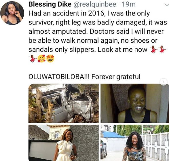 Nigerian lady who was the sole survivor in a fatal accident shares her testimony as she exceeds doctors